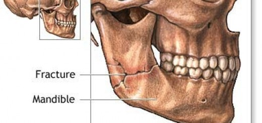 jaw reduction surgery