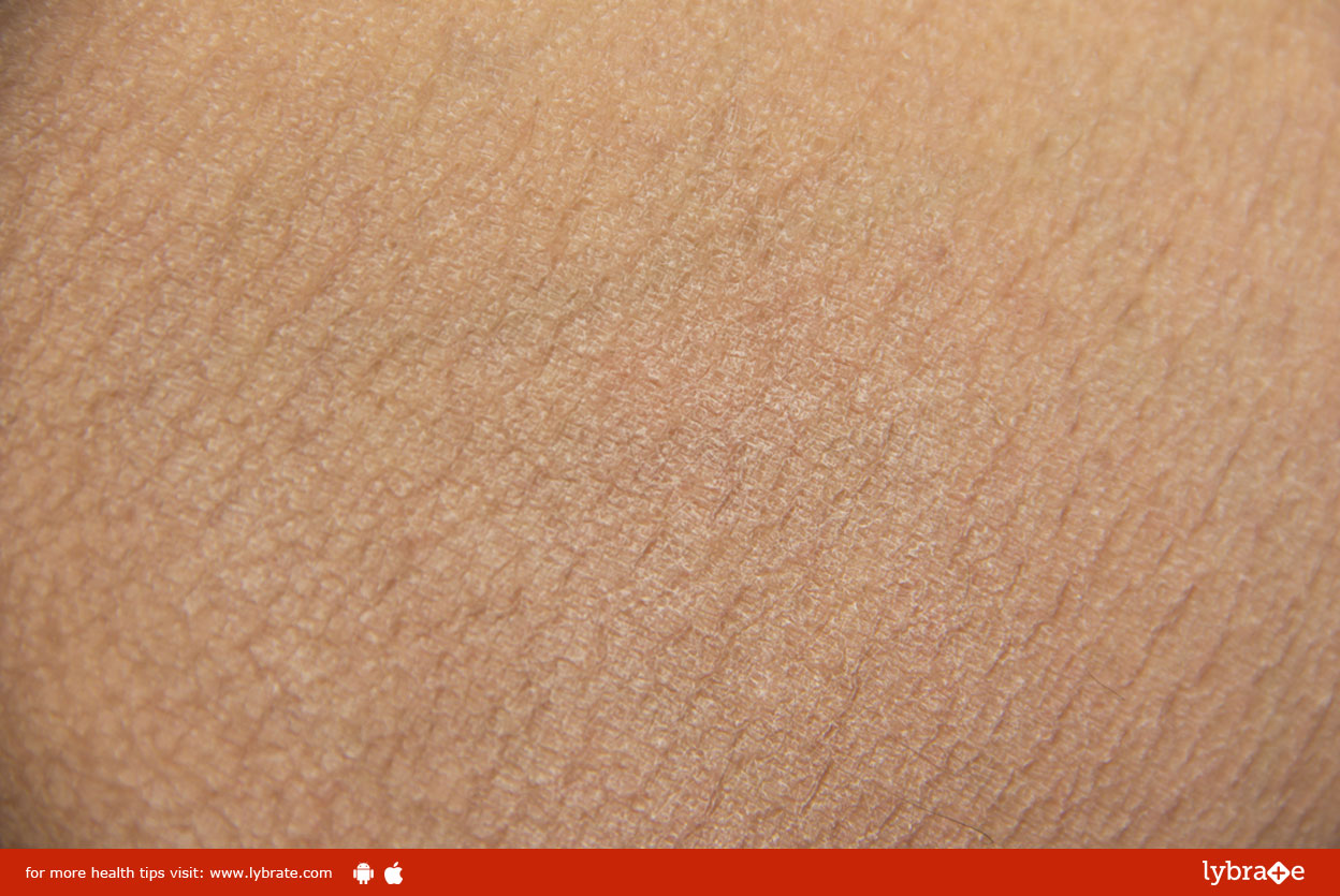 Causes and Symptoms of Ichthyosis Vulgaris