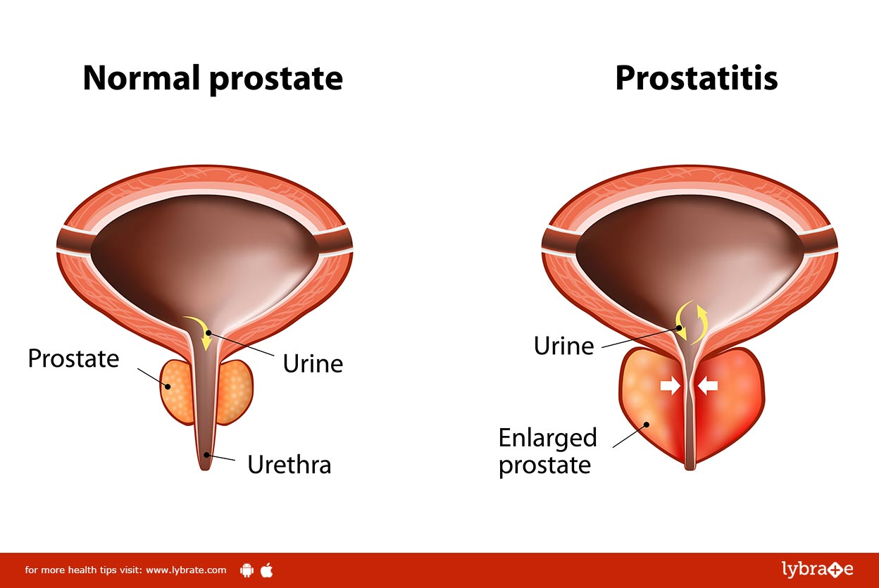 Diagnosing and Treating Prostatitis