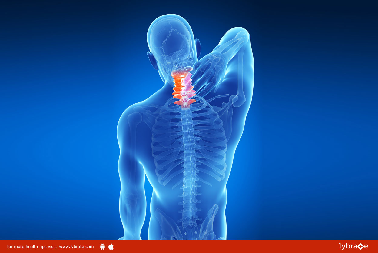 Homeopathy and cervical spondylosis