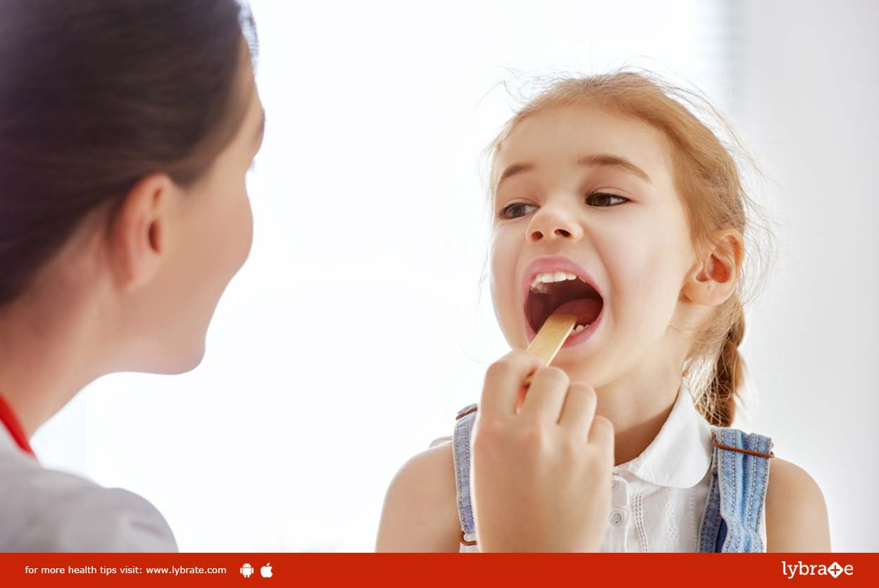 Symptoms, causes and treatment of tonsillitis