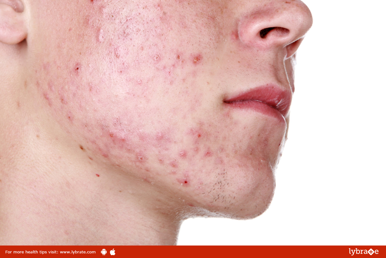 All About Acne and Scars