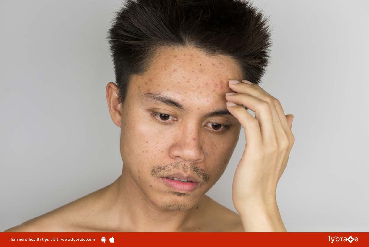 Cure and Maintain Acne Prone Skin