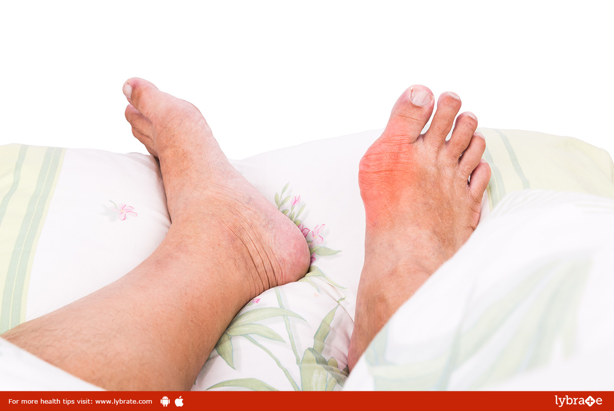 Homeopathic Medicines for Treatment of Gout