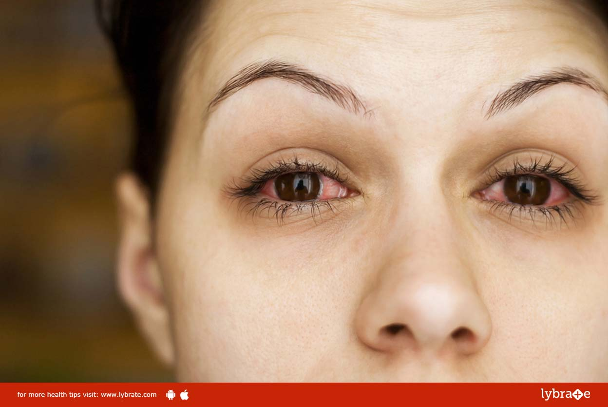 Homeopathic Treatment for Eye Allergies