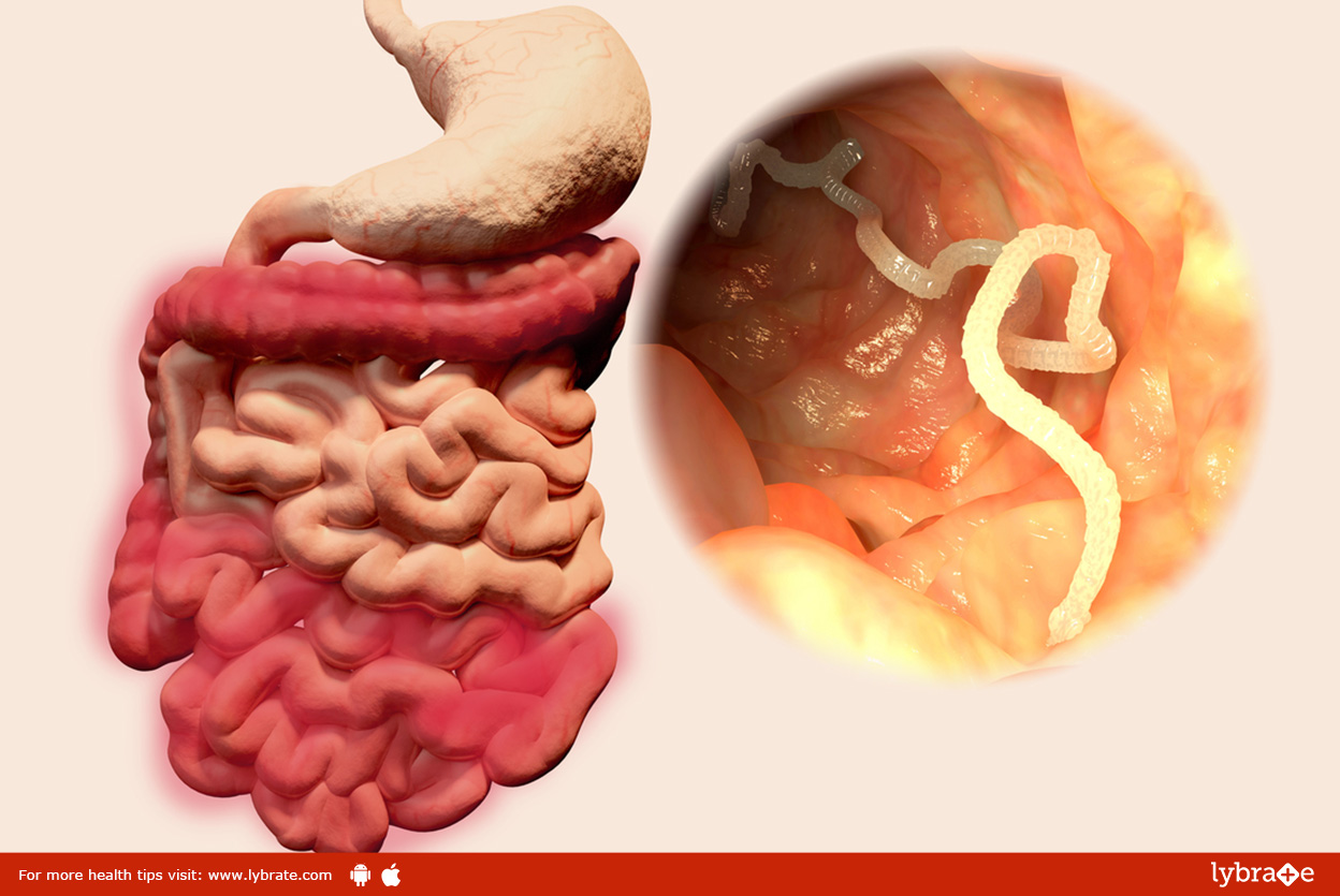 Intestinal Worms in Humans – Signs & Symptoms, Adults, Children