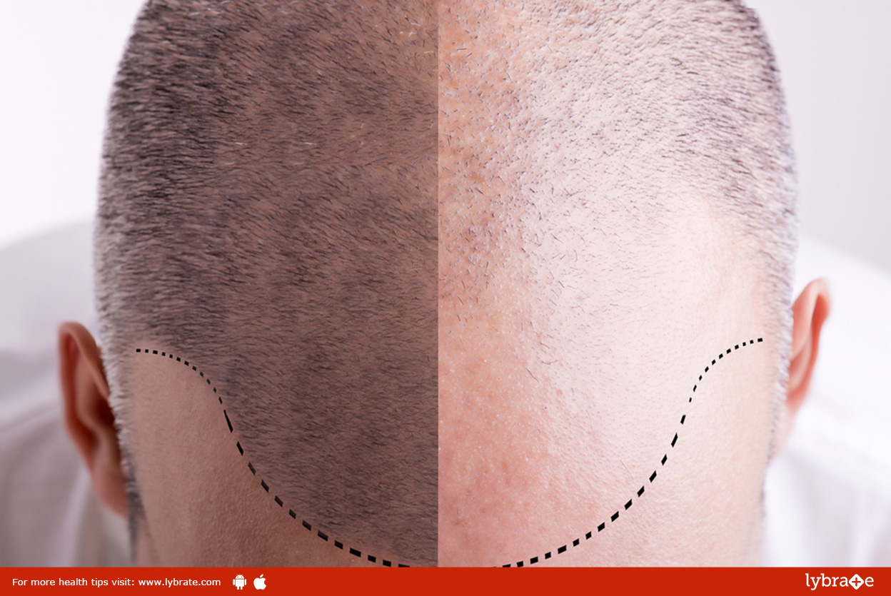 Is Hair Transplant a Permanent or a Temporary Solution?