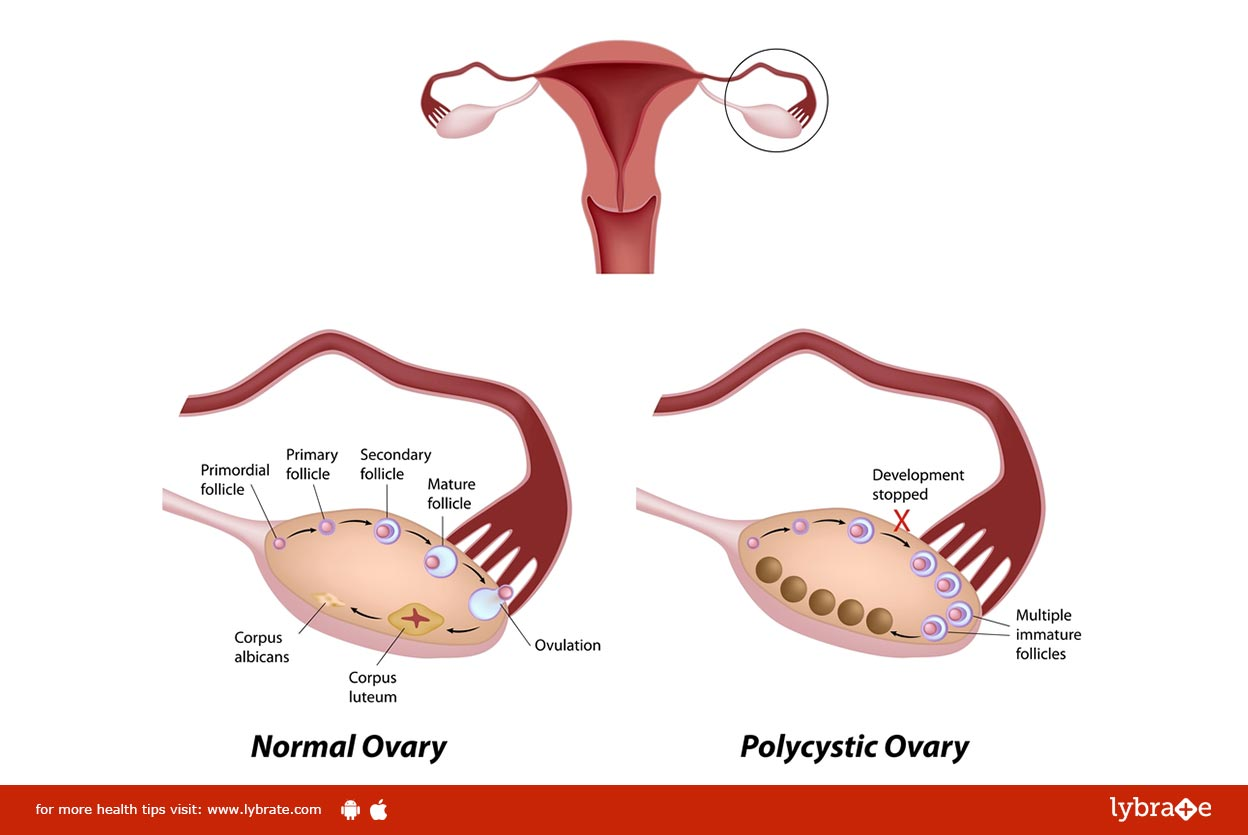 Poly Cystic Ovarian Disease and its Homoeopathic Treatment