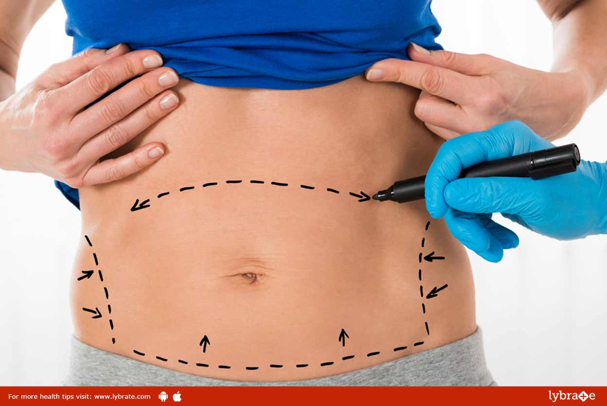 all-about-abdominoplasty-tummy-tuck