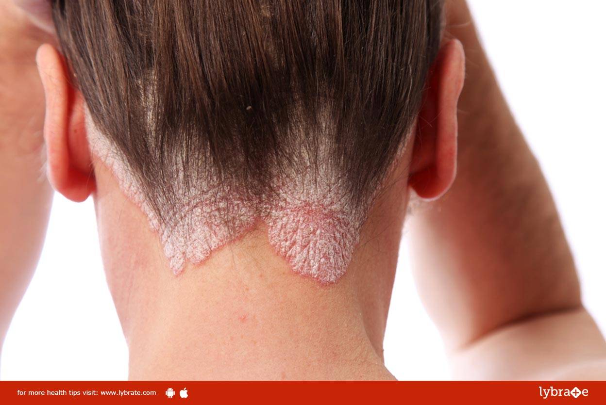 All About Scalp Psoriasis