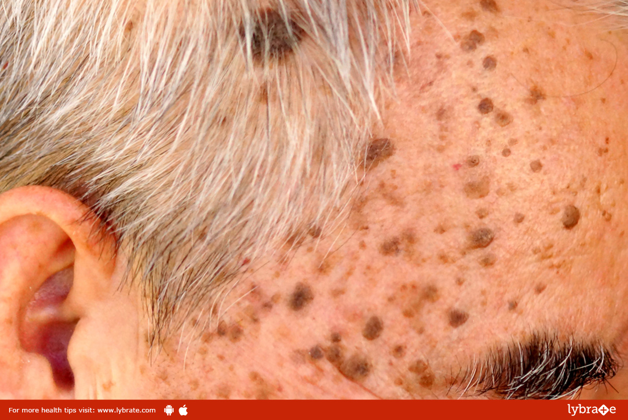 All About Skin Warts