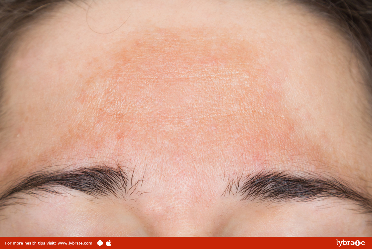 ayurvedic-treatment-for-pigmentation