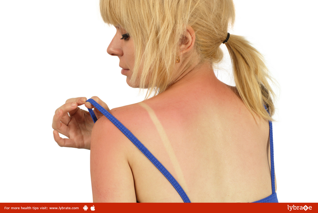 Great Tips For Treating A Bad Sunburn