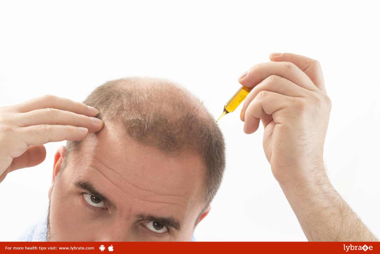 hair-transplant-myths-facts