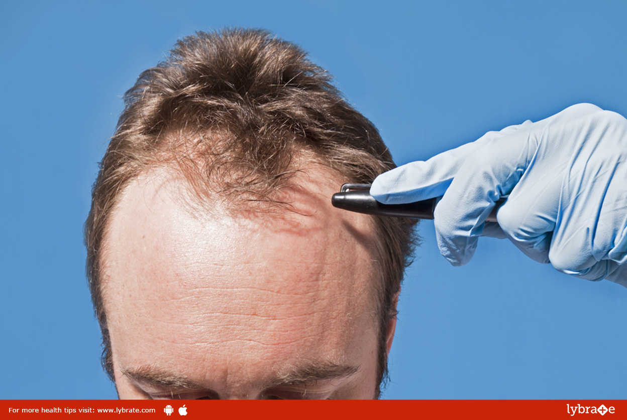 hair-transplant-surgery-how-to-choose-the-right-hair-transplant