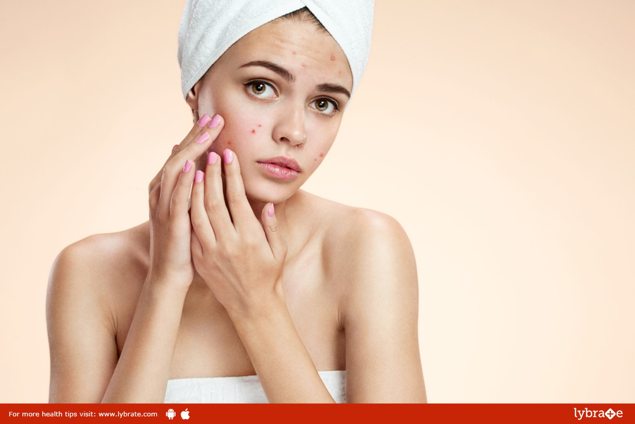 Is Acne an Infection?