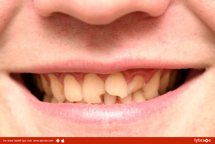 repairing-a-chipped-or-broken-tooth