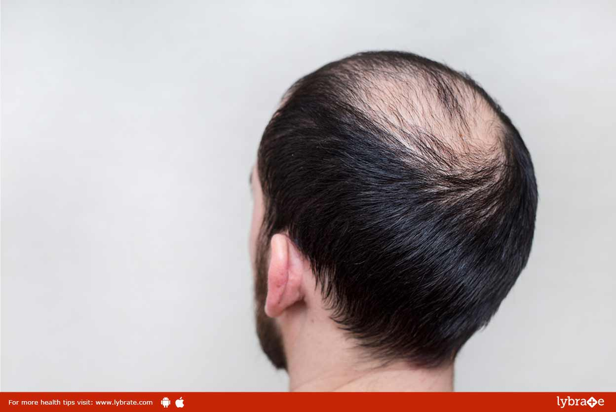 Bald Patches On The Scalp - How Effective Is Homeoapthy In Treating It?