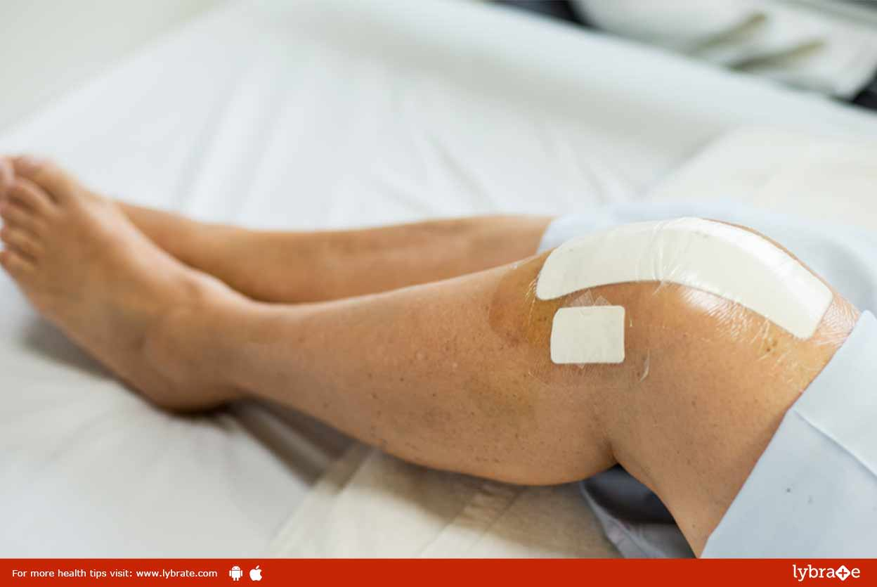 Everything You Want To Know About Knee Replacement Surgery